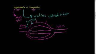 #46-Hyperemia vs. Congestion