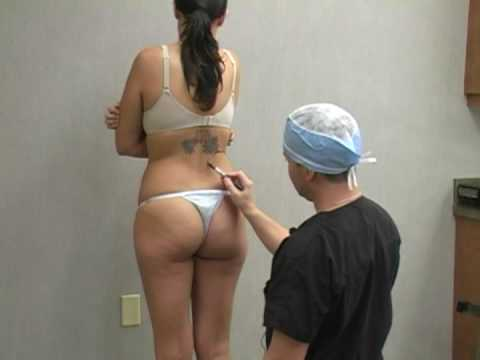Liposuction  Lipo Procedure With Dr. William Hall - Kelli D