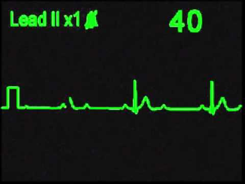 2nd Degree 2:1 AV Block - ECG Simulator - Arrhythmia Simulator