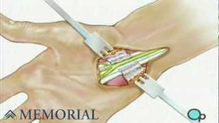 Carpal Tunnel Syndrome Repair Surgery