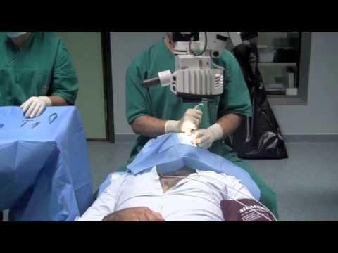 Dr Rogério Reisig Moreira - Indução de Psicoanalgesia e Estado de Fluxo - Cirurgia no Olho