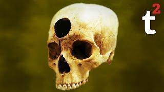getlinkyoutube.com-History's 10 Strangest Cures
