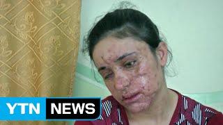 getlinkyoutube.com-'생지옥' IS 소굴에서 탈출 성공한 18살 소녀 / YTN (Yes! Top News)