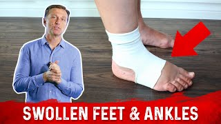 getlinkyoutube.com-Foods for Fluid Retention in the Feet and Ankles