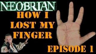 getlinkyoutube.com-How I Lost My Finger: Episode 1