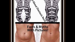 getlinkyoutube.com-All About Diastasis Recti - Tons Of Facts & Myths Explained With Pictures