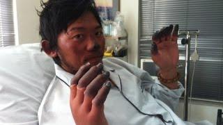 getlinkyoutube.com-【閲覧注意】エベレストで力つき回収されなかった遺体の数々