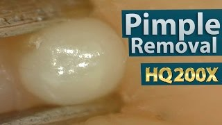 Pimple(acne) Removal Close up 200X - Blackheads Removal | 200倍でニキビを潰す(芯を除去)