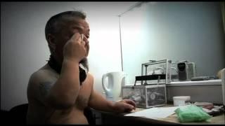 getlinkyoutube.com-Penile Problem (Part 1) - Bizarre ER