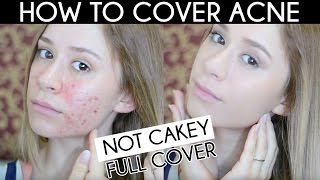 getlinkyoutube.com-HOW TO COVER ACNE | Not Cakey Acne Coverage Foundation Routine