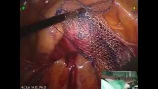 getlinkyoutube.com-賴鴻政教授 婦科達文西機械手臂薦骨前陰道固定手術(沒有子宮) da Vinci Robotic Sacral colpopex (No uterus) Dr.Hung-Cheng Lai