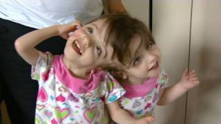 getlinkyoutube.com-Conjoined Twins: Twin Girls, A Medical Wonder