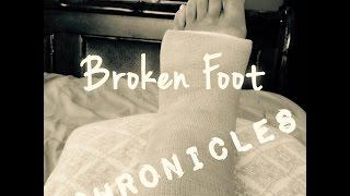 Broken Foot Chronicles & Updates | Tia Kirby
