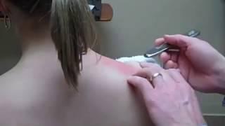 getlinkyoutube.com-Graston Technique - Supraspinatous