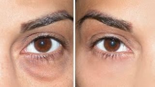 getlinkyoutube.com-How to Cover Dark Circles + Under Eye Bags