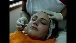 getlinkyoutube.com-VÍDEO PEELING QUÍMICO II.wmv