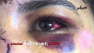 getlinkyoutube.com-الفتاة التي حاولت الإنتحار بالبيضاء | 8 مارس تيفي