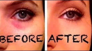 getlinkyoutube.com-BYE BYE DARK CIRCLES using 2 DRUGSTORE Products!! (compares to 1 MAC Product)