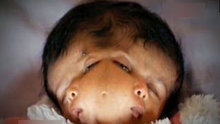 getlinkyoutube.com-Miracle Baby With 2 Faces | Hope and Faith