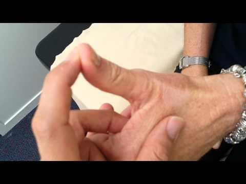 谭无边老师平衡针法治疗大拇指外伤疼痛-新西兰立竿见影案例