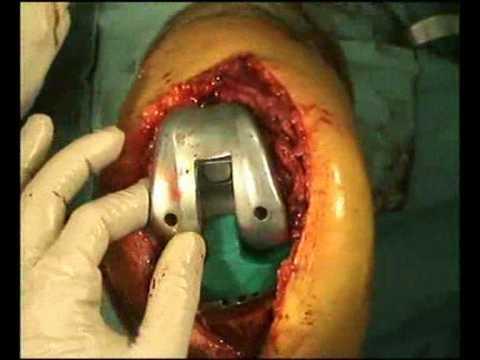 revisione protesi ginocchio part 2 di 2