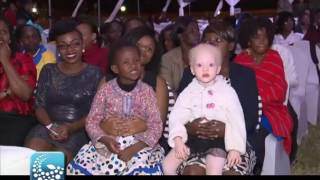 Mr and Miss Albinism Kenya