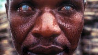 getlinkyoutube.com-【閲覧注意】地球上で最も危険な寄生虫たち!症状がヤバすぎる