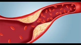 وصفة لعلاج السكري - الكولسترول - الضغط المرتفع ان شاء الله  dr jamal skali