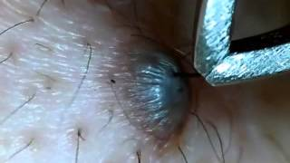 getlinkyoutube.com-ほくろの毛を引っこ抜く!part3 Hair of a mole!