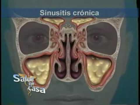 Cirugía de Sinusitis: Relación con septo nasal  y cornetes