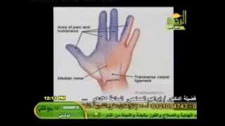 getlinkyoutube.com-أسباب وعلاج التنميل والألم والإلتهاب والتورم الذى يحدث فى اليدين لكثير من النساء د أمير صالح