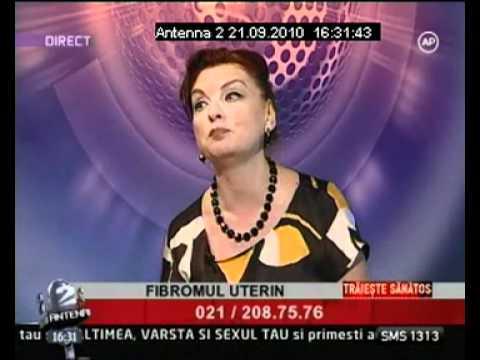 Dr. ZORELA SGARBURA- Fibromul uterin (4)