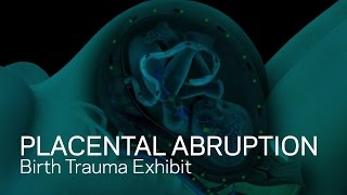 getlinkyoutube.com-Placental Abruption