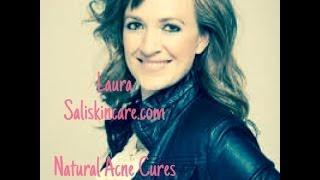 getlinkyoutube.com-Natural Acne Cures by Salis Skincare