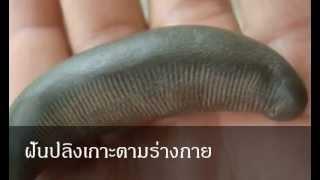 getlinkyoutube.com-ฝันปลิงเกาะตามร่างกาย หมายถึงอะไร (เลขเด็ด)