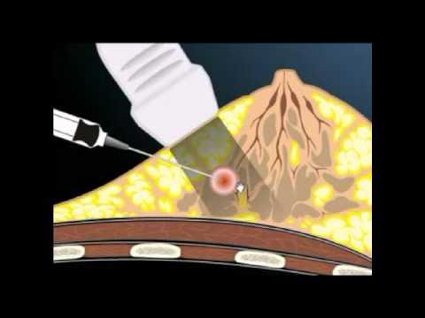Punção biopsia aspirativa da mama