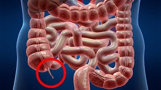 getlinkyoutube.com-Scientists Discover The Purpose Of The Appendix