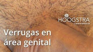 getlinkyoutube.com-Verrugas en área genital (15140)