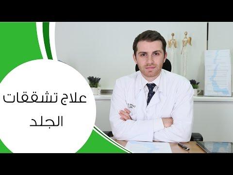 علاج تشققات الجلد I مع الدكتور