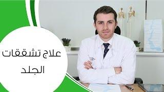 getlinkyoutube.com-علاج تشققات الجلد I مع الدكتور