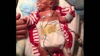 getlinkyoutube.com-nicu premature baby . born at 28 weeks 1lb 5oz