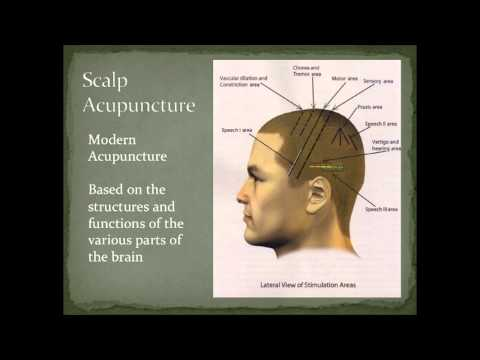 Scalp Acupuncture Overview