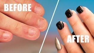 getlinkyoutube.com-Fix Short Bitten Nails with Acrylic