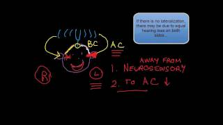getlinkyoutube.com-Cranial Nerve VIII (2 of 3):  Weber's Test