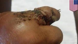 getlinkyoutube.com-خوسي كانسيكو يحمل صورة مرعبة تظهر إصبعه المصاب يسقط من يده