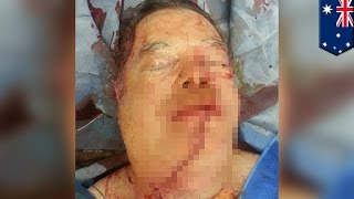 getlinkyoutube.com-【閲覧注意】チェーンソーで誤って自分の顔を…自ら運転し病院へ
