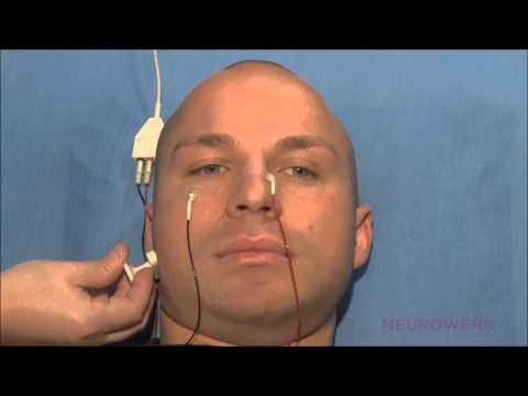 Motoric Neurography - Facial Nerve