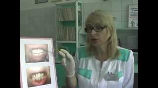 Отбеливание и сохранение зубов с помощью щетки Curaprox