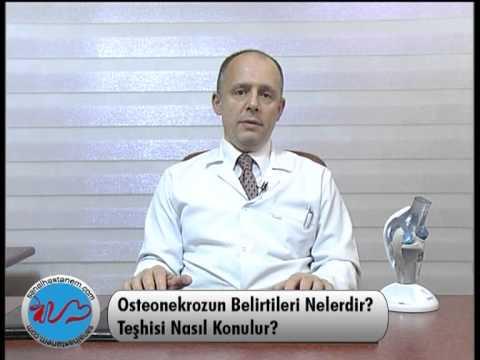 Osteonekroz Belirtileri Nelerdir ?