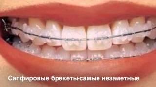 getlinkyoutube.com-Разновидности Брекетов